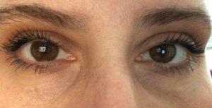 Notice dark circles and glazed look. PS-I'm not really cross-eyed.