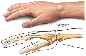 ganglion